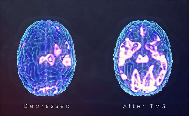 Comparing brain activity before and after TMS
