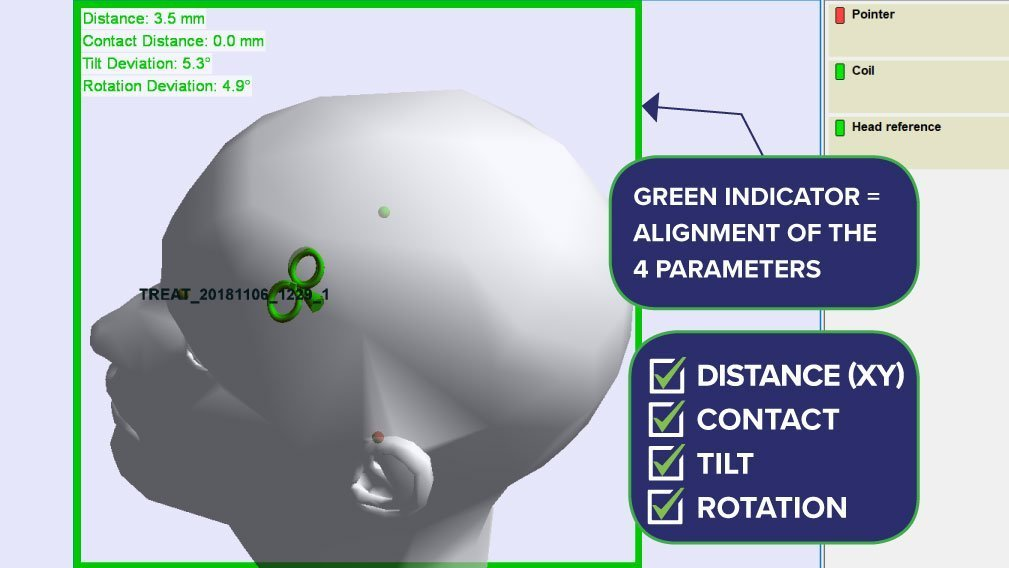 Image showing the confirmed coil contact using the TMS 3D positioning system